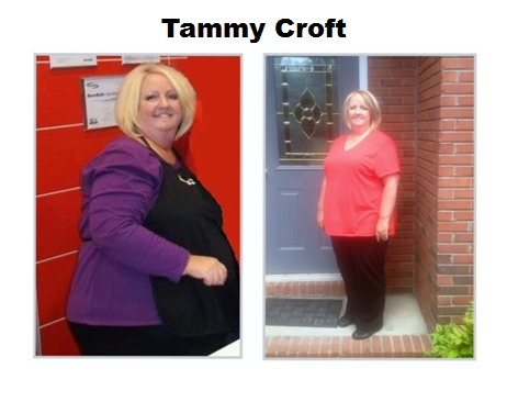 Weight loss client in Ormond Beach Florida